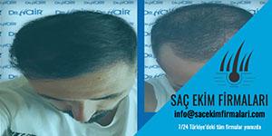 Hangi Hastalıklarda Saç Ekimi Yapılmaz
