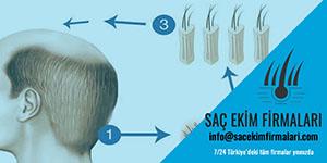 Saç Ekiminden Sonra Ne Zaman Saçlar Dökülür
