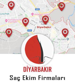 Diyarbakır Saç Ekim Firmaları